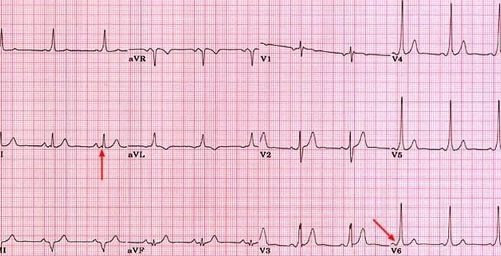 Wolff-Parkinson-...Q Wave Formation