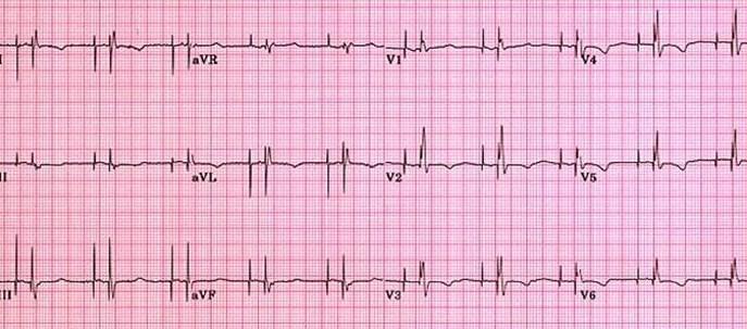 Apparent fracture of a pacemaker lead -- HEAVEN et al. 82 (1): 104 ...