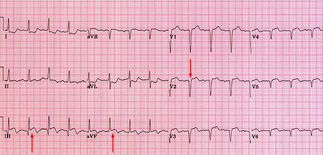 Myocardial Infarction Ecg Q Wave Q waves of 0.04 seconds (1 mm)