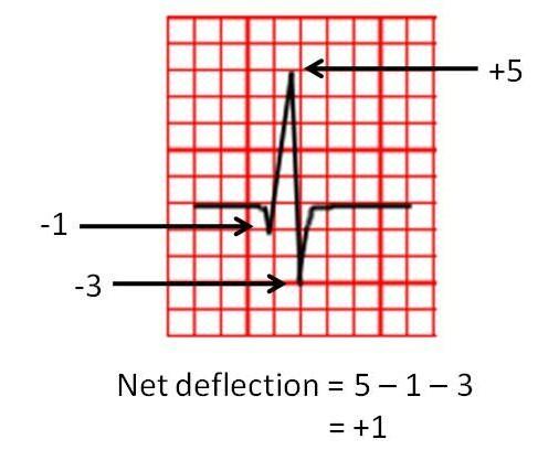 Heart axis calculator.