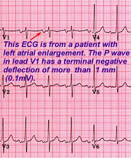 Step 5 Inspect P Waves For Atrial Enlargement
