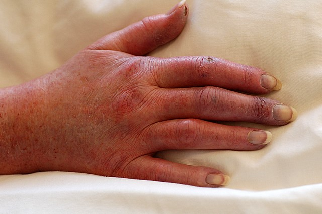 Severe Raynauds Causing Ulceration