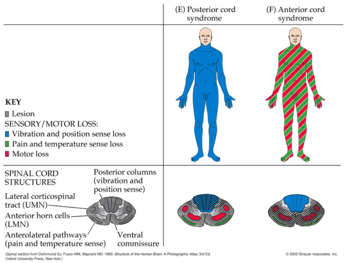 The Vascular Supply Of The Spinal Cord