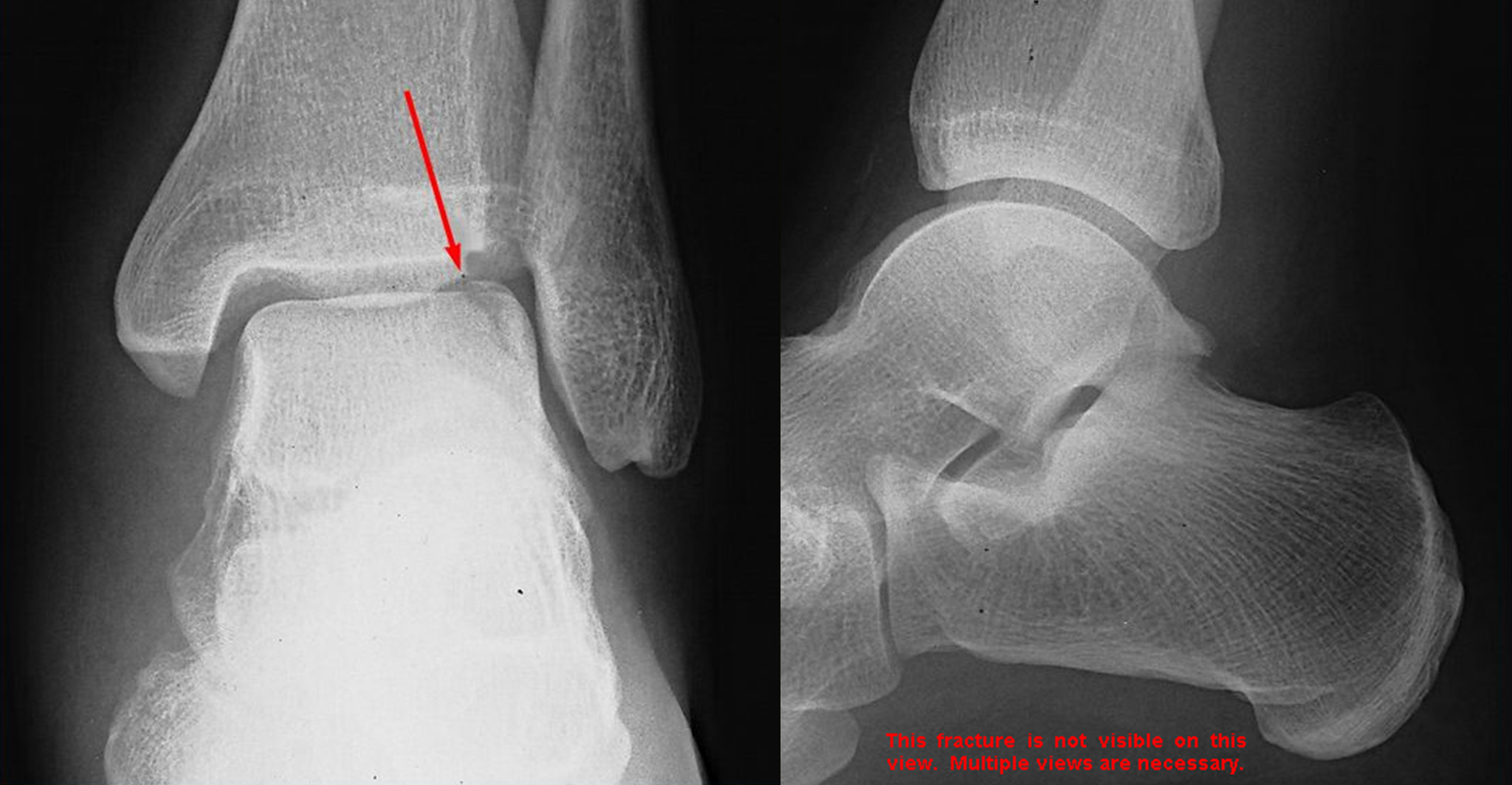 Osteochondral Fracture Of The Talar Dome