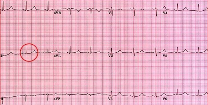Prolonged QT interval