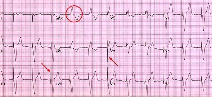 pacemaker single chamber atrial