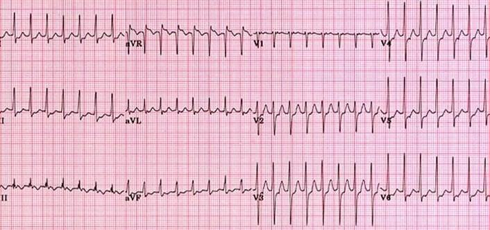 What Is Svt >> Supraventricular Tachycardia Av Reentry