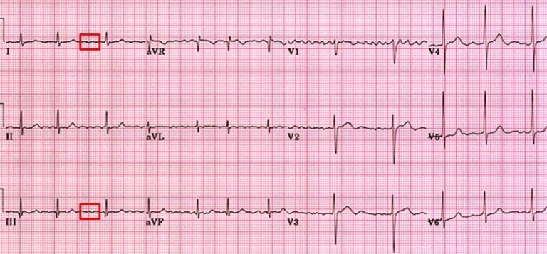 Answer: Single chamber ventricular pacemaker rhythm with 100% capture ...