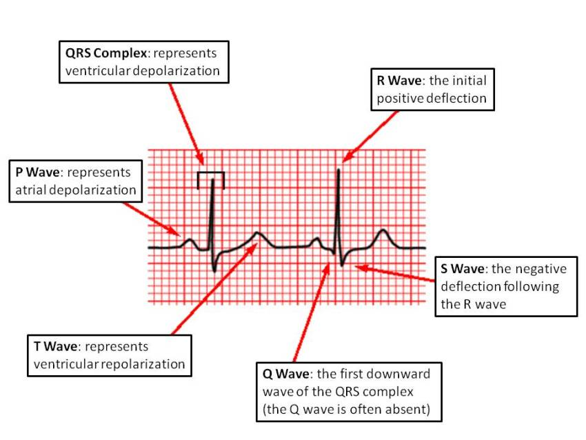 Image result for what do waves represent in an ecg